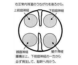聴神経腫瘍についての図-4