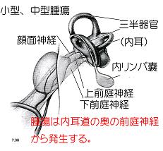 聴神経腫瘍についての図-5
