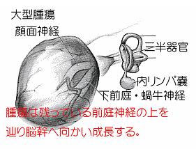 聴神経腫瘍についての図-6