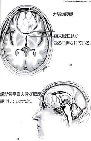 嗅窩部髄膜の図-1