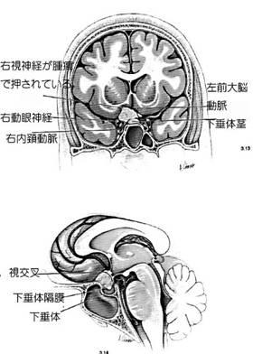 鞍結節髄膜の図-1