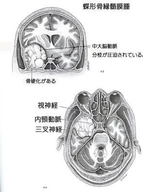 蝶形骨縁髄膜-1