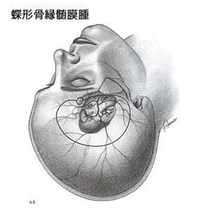 蝶形骨縁髄膜-2