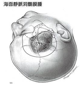海綿静脈洞髄膜-2