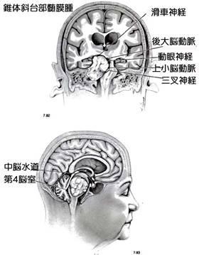 錐体斜台部髄膜-1