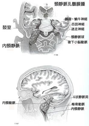 頸静脈孔髄膜-1