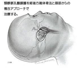 頸静脈孔髄膜-2