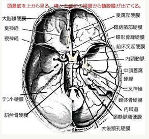 頭蓋底髄膜腫についての図-1